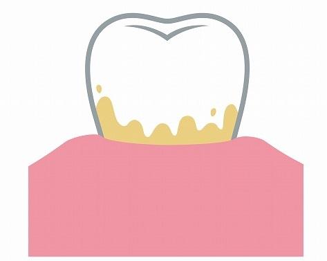 歯石とは、歯垢が固まったもの