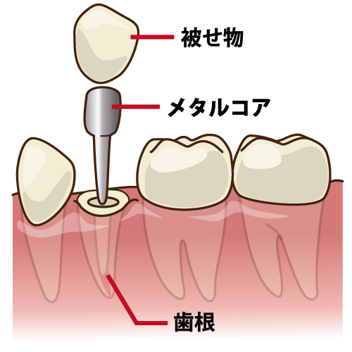 かぶせもの(差し歯)とインプラントはどう違う?