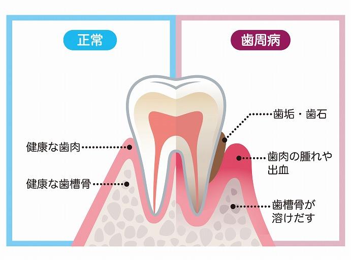 歯周病は、「骨が溶けてしまう」病気です