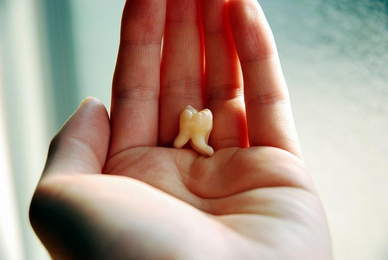 歯周病を放置すると