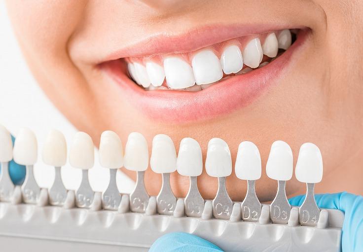 堺でホワイトニングが安いふじもと歯科